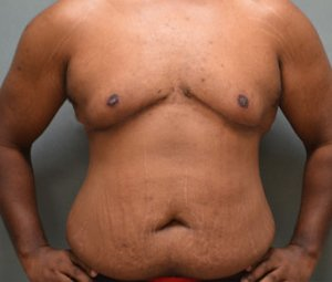 manhattan gynecomastia surgery after 1